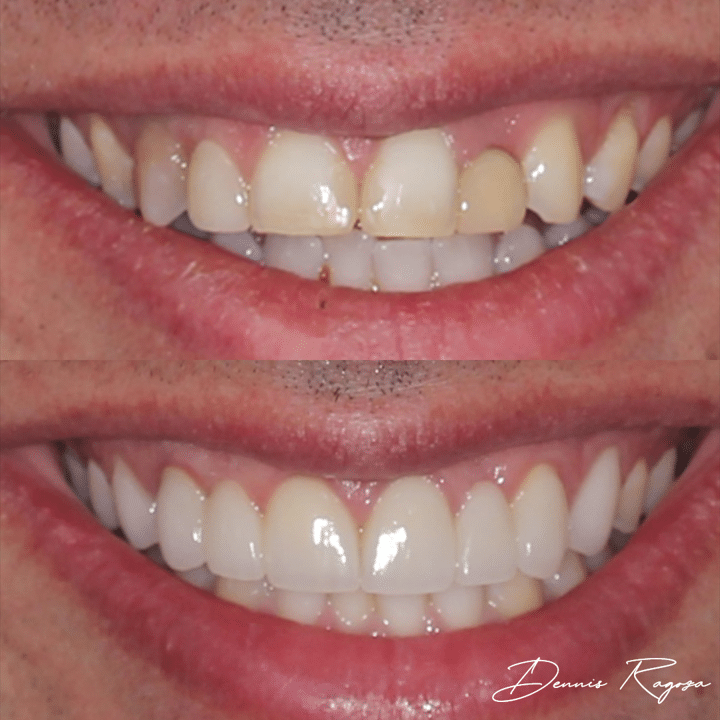 Before and After Case 2