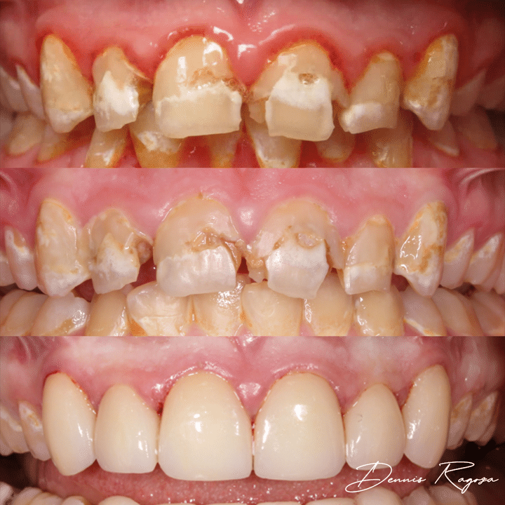 Before and After Case 1